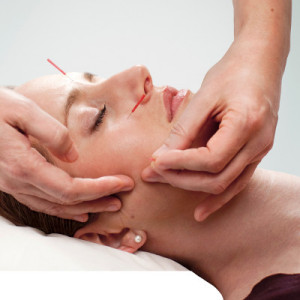 Acupuncture patient receiving treatment to her face